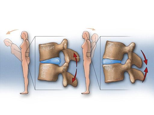 Loš položaj tijela , uzrokuje diskus herniju(protruziju)