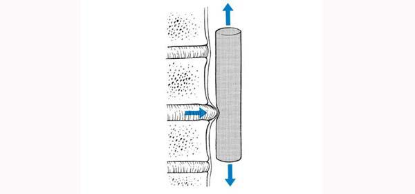 Bol u vratu | pomjeranje_diska